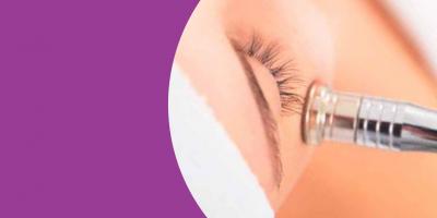Anti Acne o tratamento de Peeling para manchas na pele causadas pela a acne.